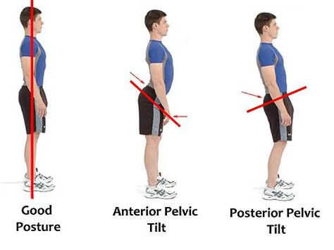 bad-posture-better-posture